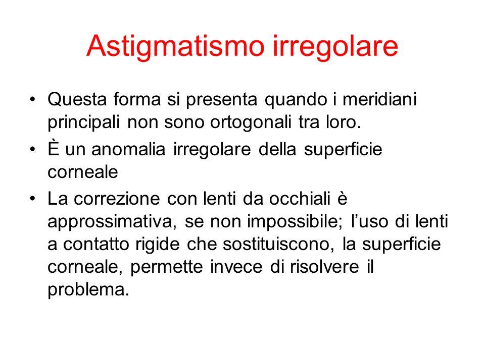 Astigmatismo irregolare
