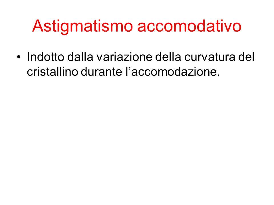 Astigmatismo accomodativo