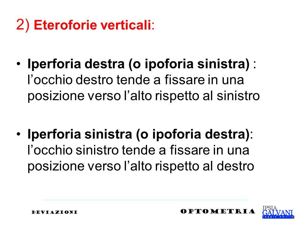 2) Eteroforie verticali: