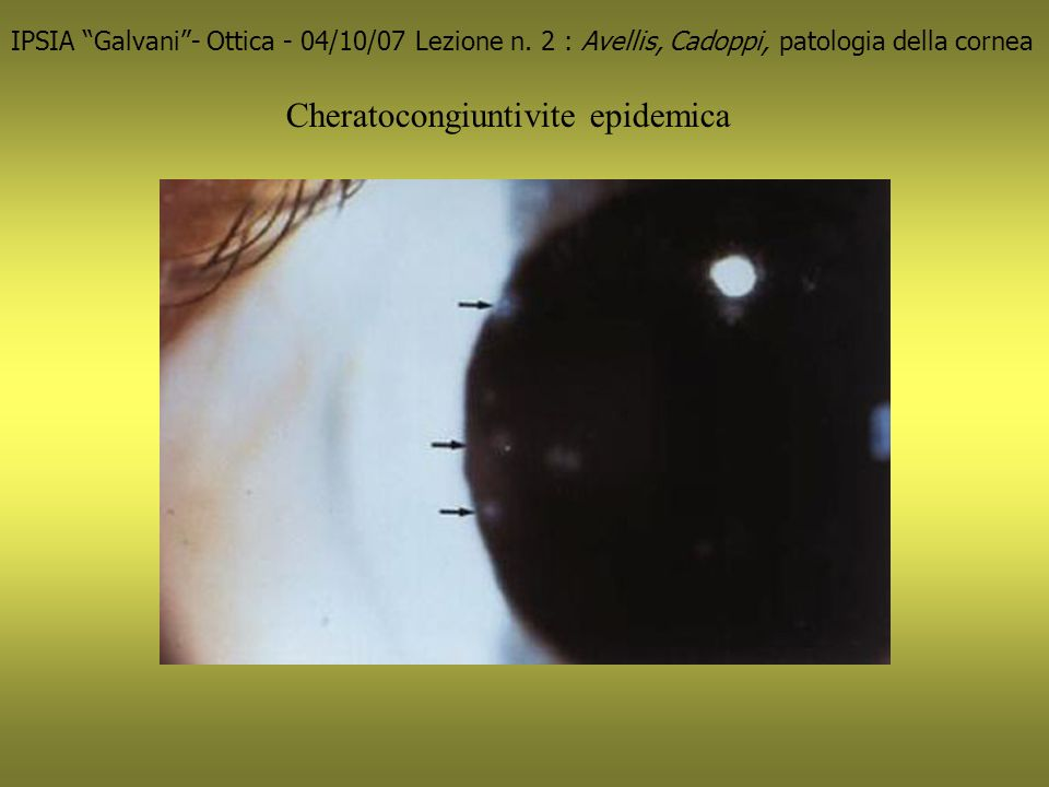 Cheratocongiuntivite epidemica