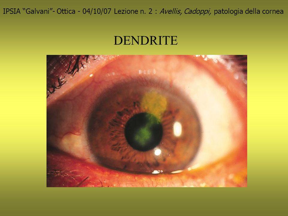 IPSIA Galvani - Ottica - 04/10/07 Lezione n