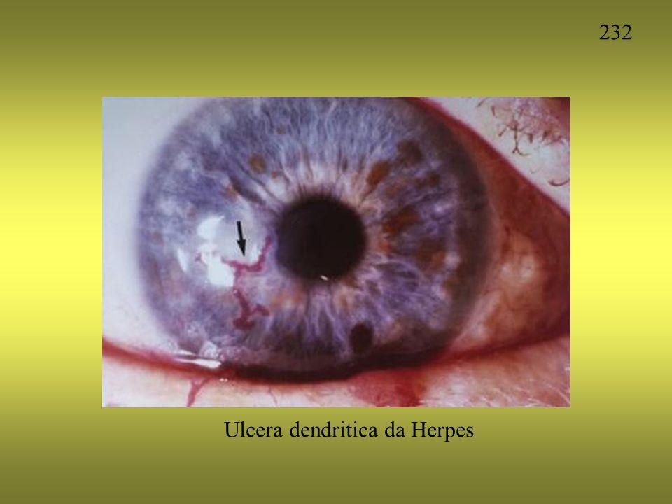 232 Ulcera dendritica da Herpes
