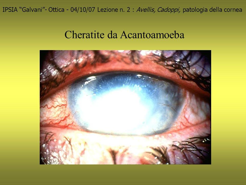 Cheratite da Acantoamoeba