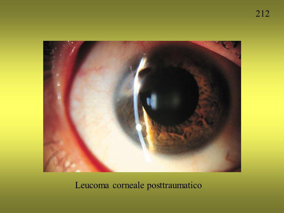 212 Leucoma corneale posttraumatico