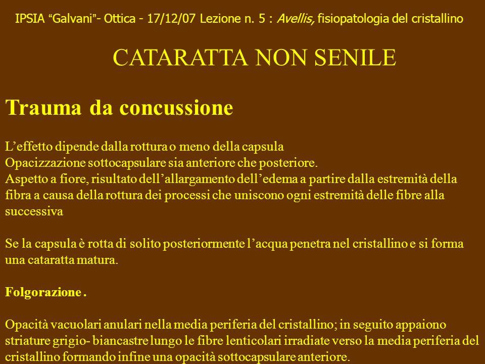 CATARATTA NON SENILE Trauma da concussione