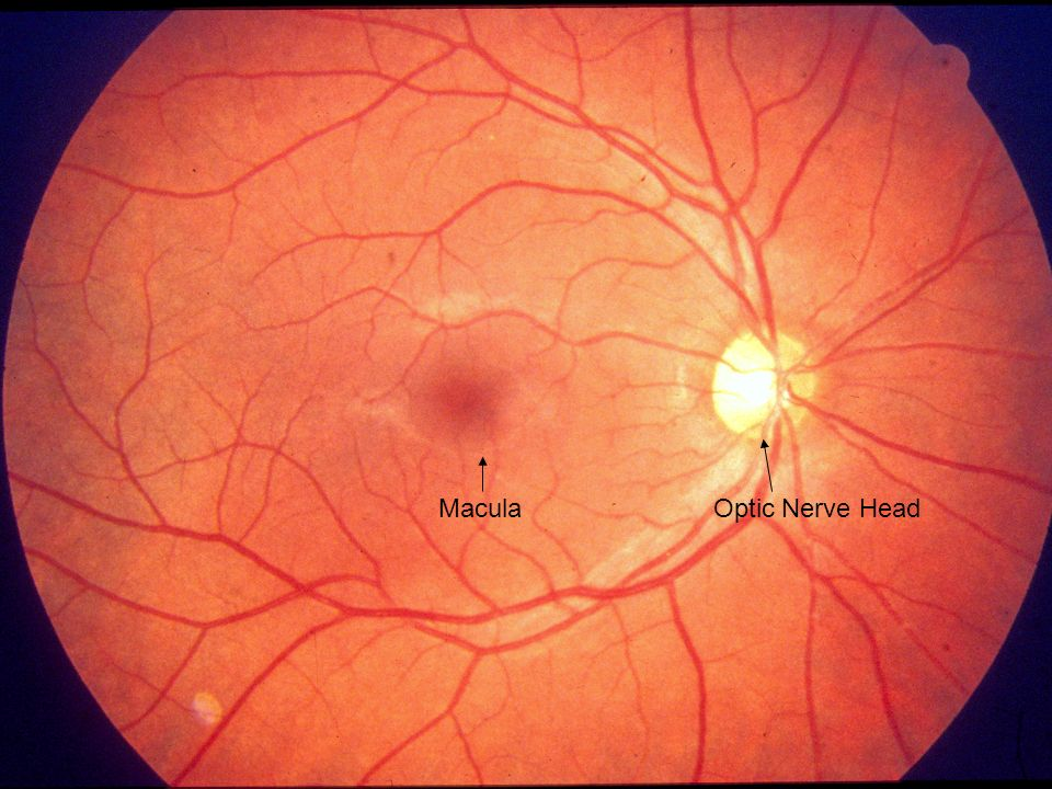 Macula Optic Nerve Head