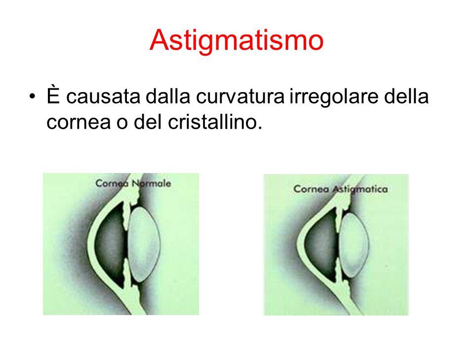 Astigmatismo È causata dalla curvatura irregolare della cornea o del cristallino.