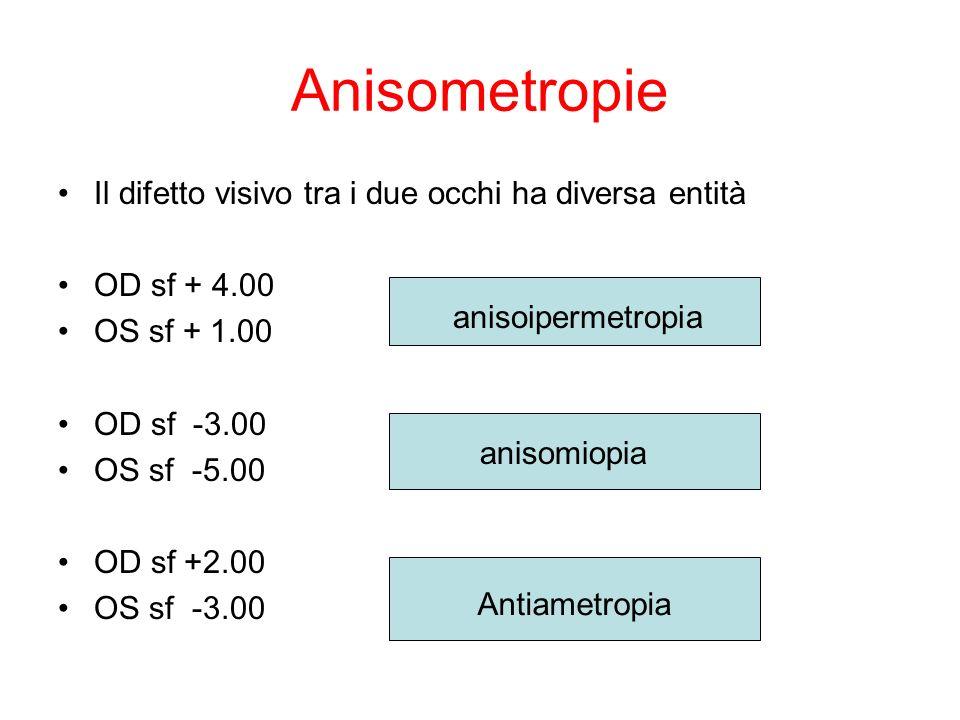Anisometropie Il difetto visivo tra i due occhi ha diversa entità