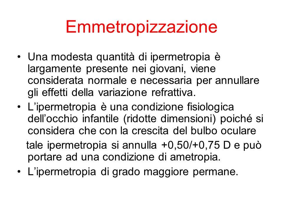 Emmetropizzazione