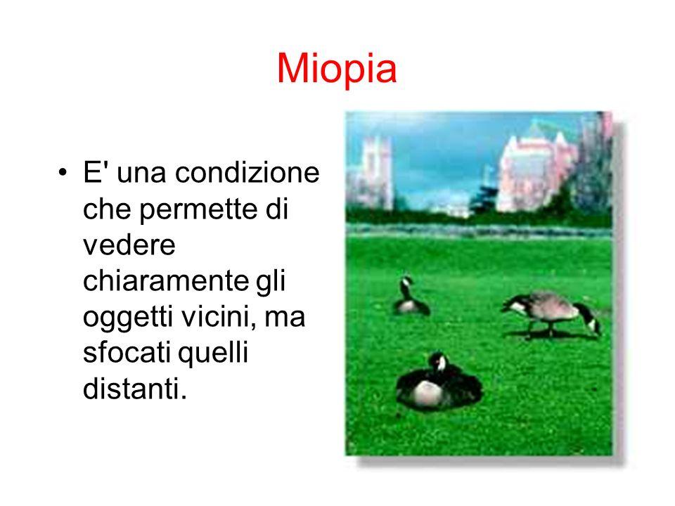 Miopia E una condizione che permette di vedere chiaramente gli oggetti vicini, ma sfocati quelli distanti.
