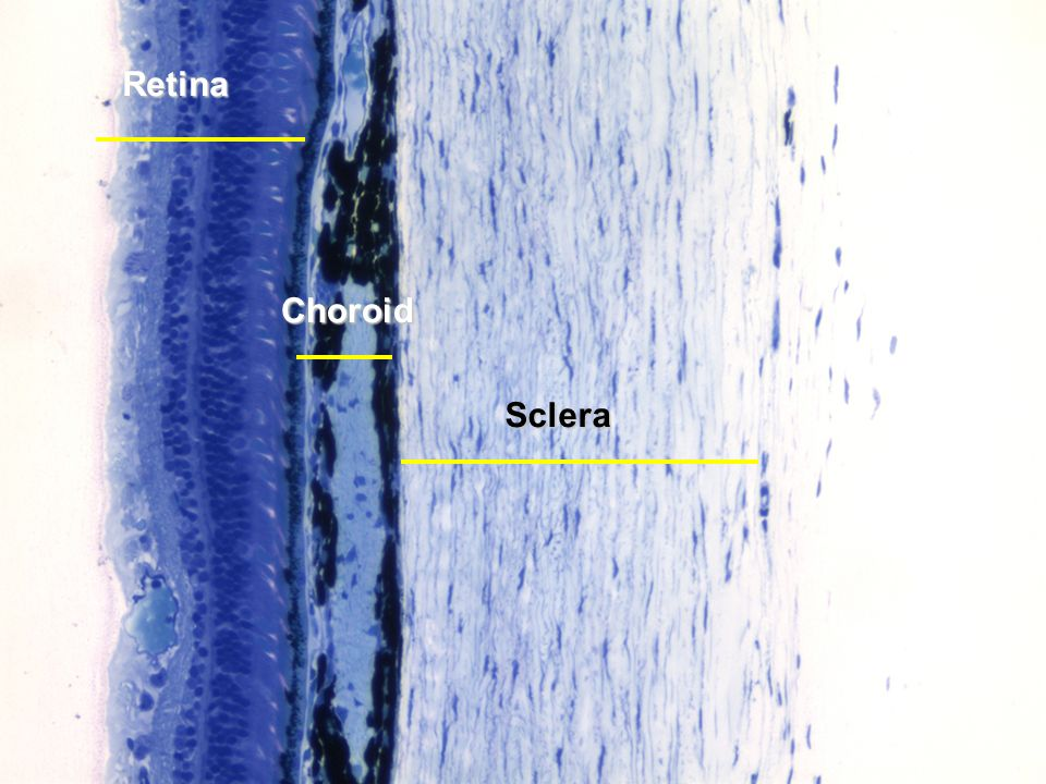 Retina Choroid Sclera