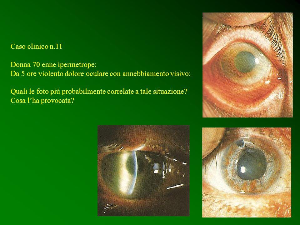 Caso clinico n.11 Donna 70 enne ipermetrope: Da 5 ore violento dolore oculare con annebbiamento visivo: