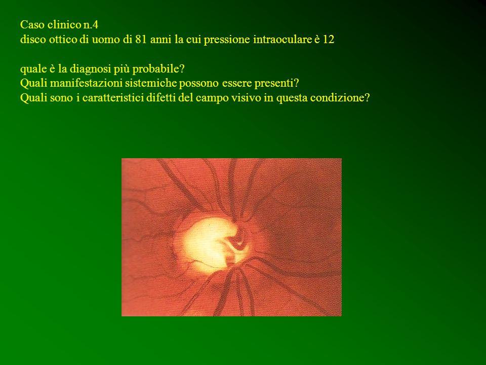 Caso clinico n.4 disco ottico di uomo di 81 anni la cui pressione intraoculare è 12. quale è la diagnosi più probabile