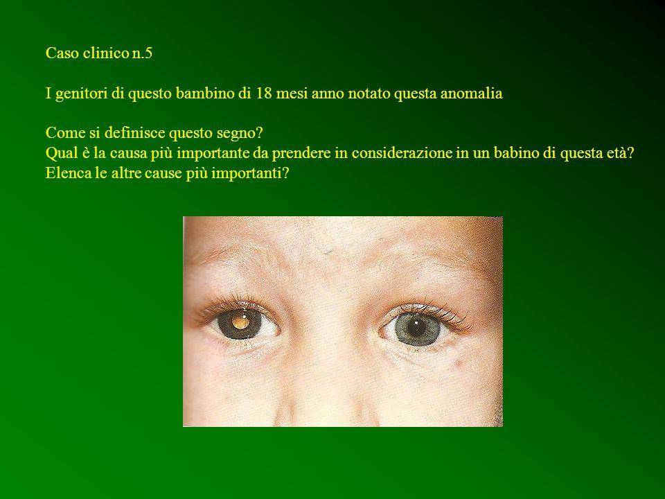 Caso clinico n.5 I genitori di questo bambino di 18 mesi anno notato questa anomalia. Come si definisce questo segno