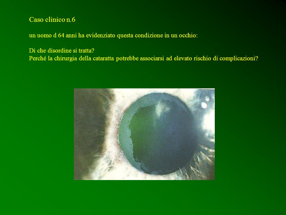 Caso clinico n.6 un uomo d 64 anni ha evidenziato questa condizione in un occhio: Di che disordine si tratta