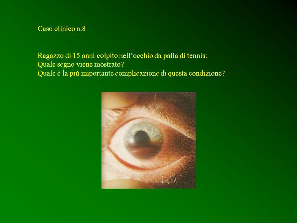 Caso clinico n.8 Ragazzo di 15 anni colpito nell'occhio da palla di tennis: Quale segno viene mostrato