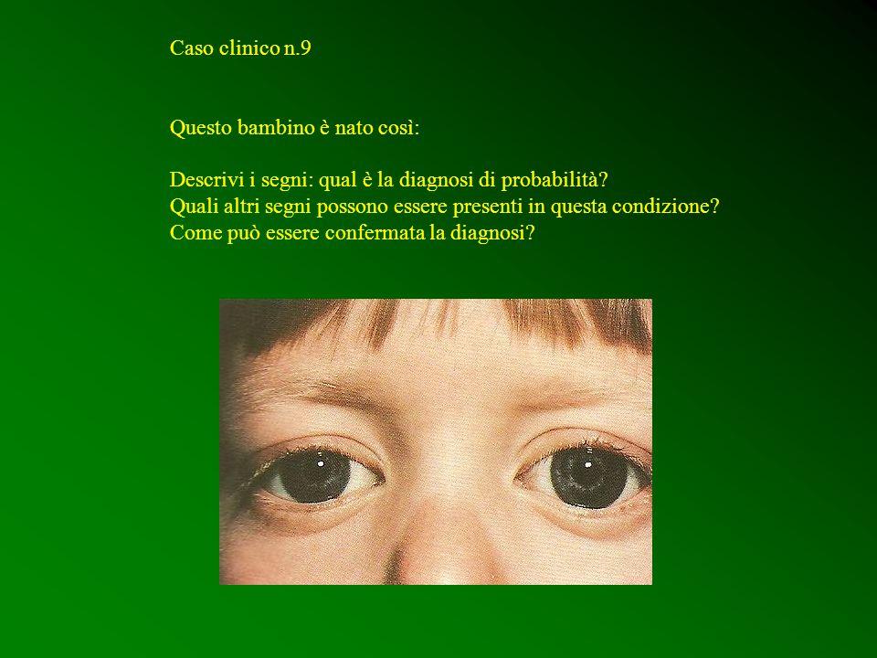 Caso clinico n.9 Questo bambino è nato così: Descrivi i segni: qual è la diagnosi di probabilità