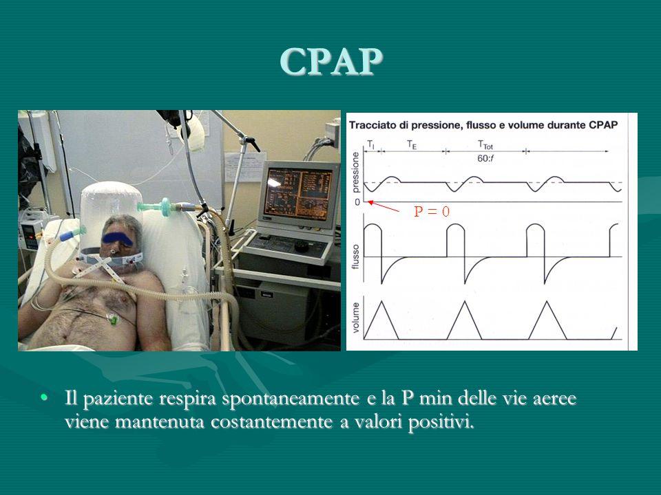 CPAP P = 0.