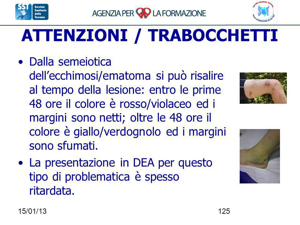 ATTENZIONI / TRABOCCHETTI