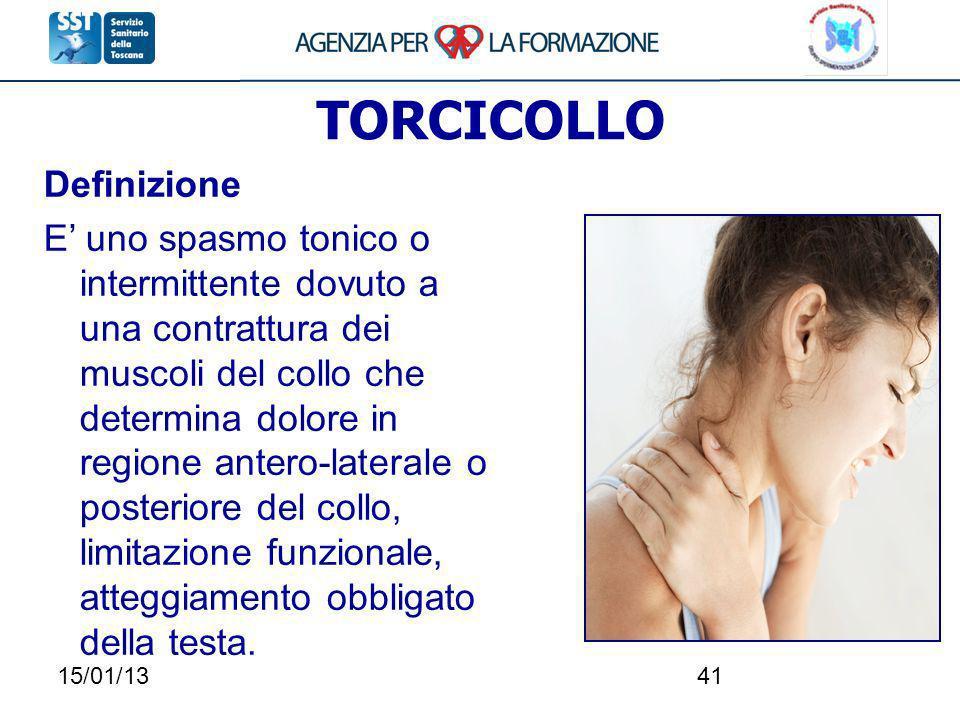 TORCICOLLO Definizione