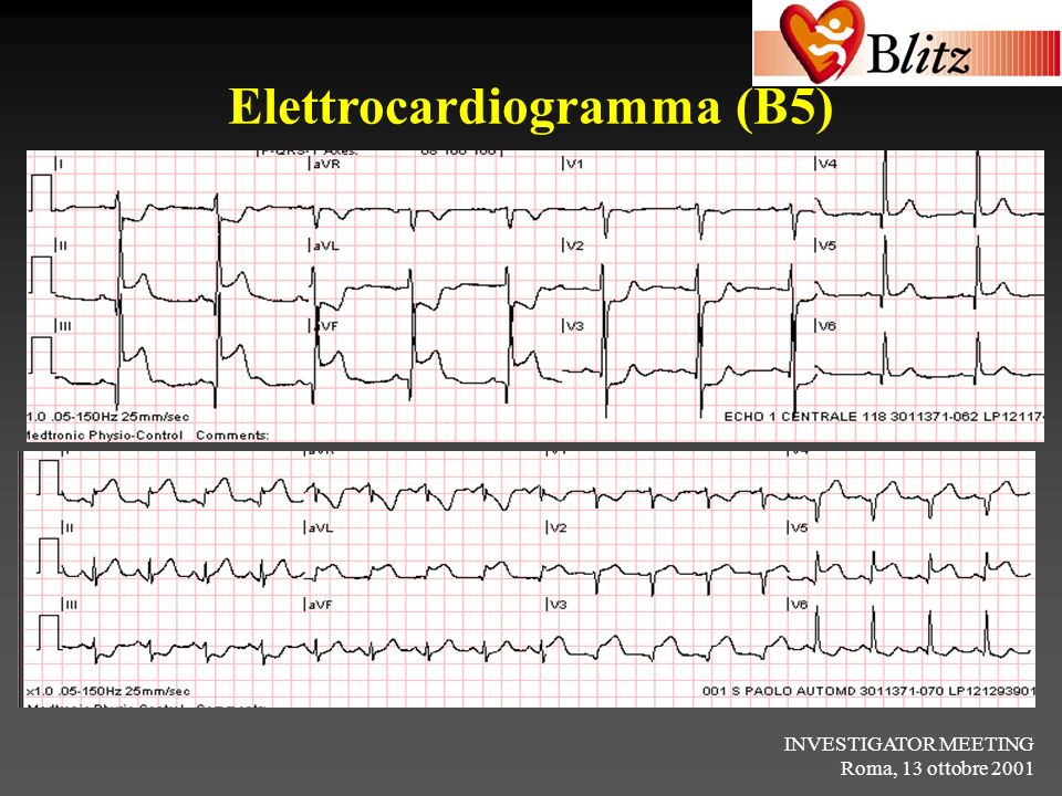Elettrocardiogramma (B5)