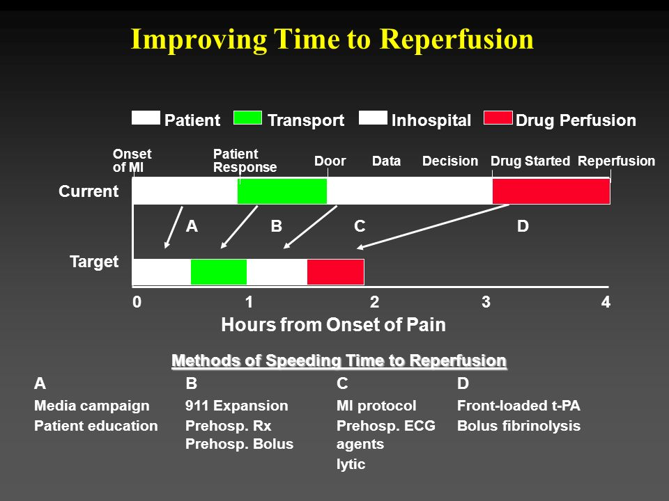 Improving Time to Reperfusion