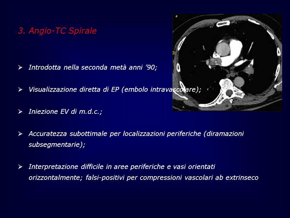 3. Angio-TC Spirale Introdotta nella seconda metà anni '90;