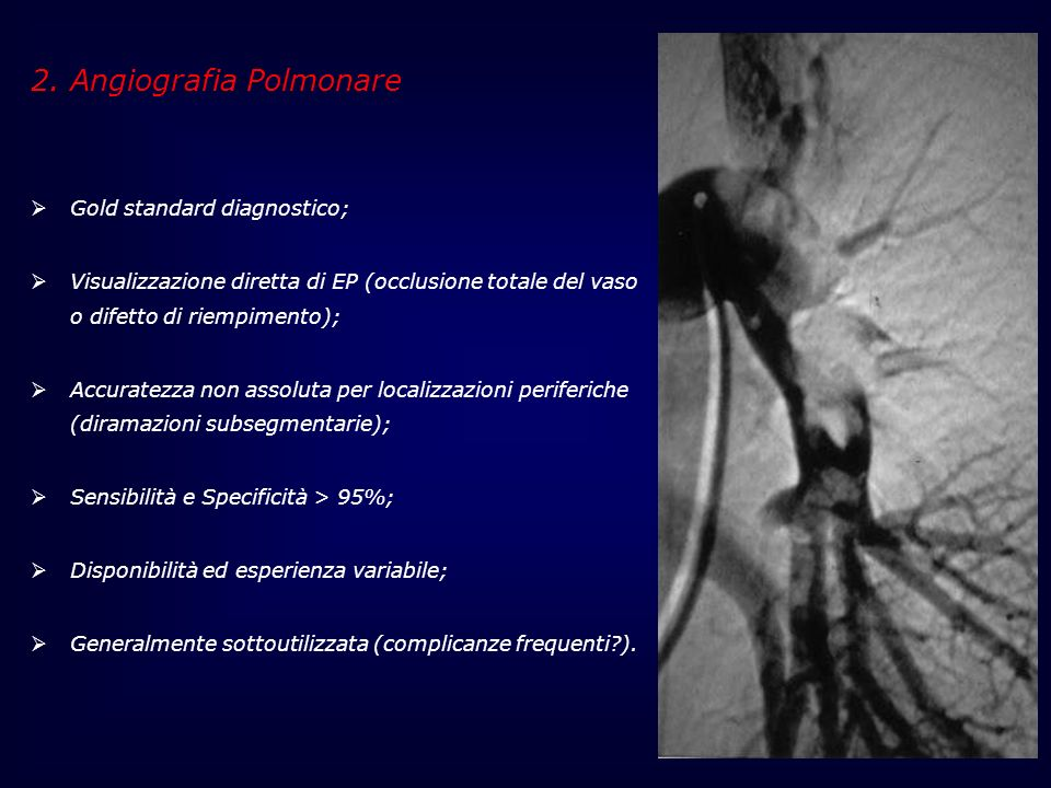 2. Angiografia Polmonare