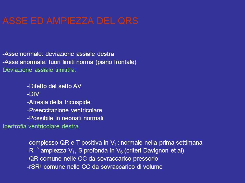 ASSE ED AMPIEZZA DEL QRS