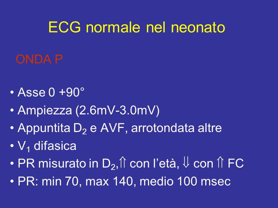 ECG normale nel neonato