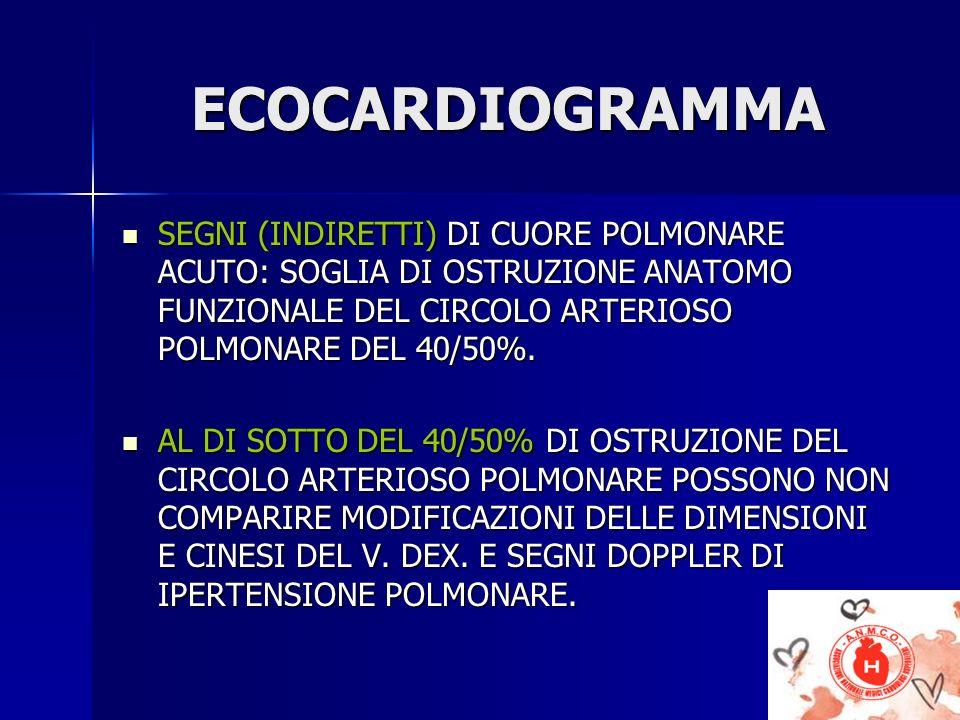 ECOCARDIOGRAMMA SEGNI (INDIRETTI) DI CUORE POLMONARE ACUTO: SOGLIA DI OSTRUZIONE ANATOMO FUNZIONALE DEL CIRCOLO ARTERIOSO POLMONARE DEL 40/50%.