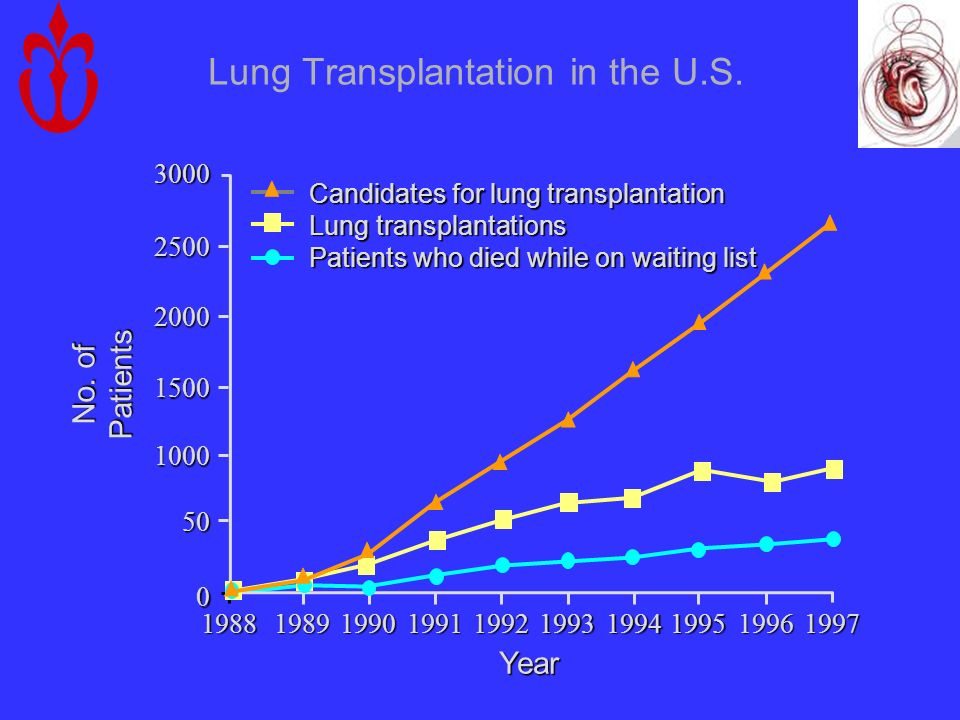Lung Transplantation in the U.S.