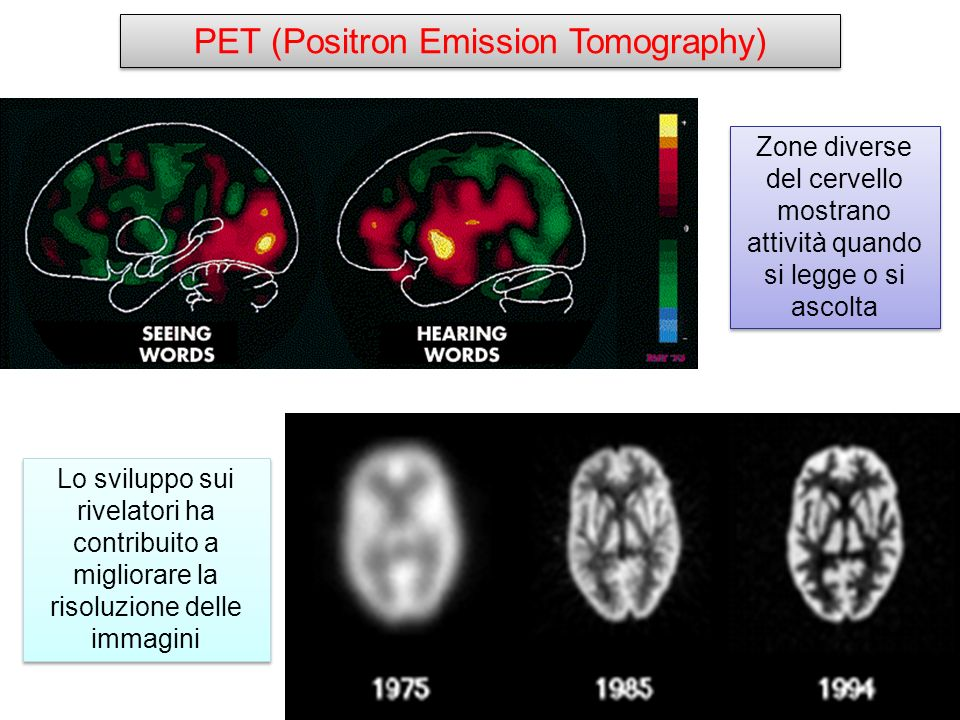 PET (Positron Emission Tomography)
