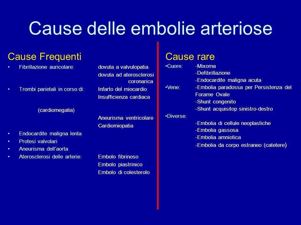 Cause delle embolie arteriose