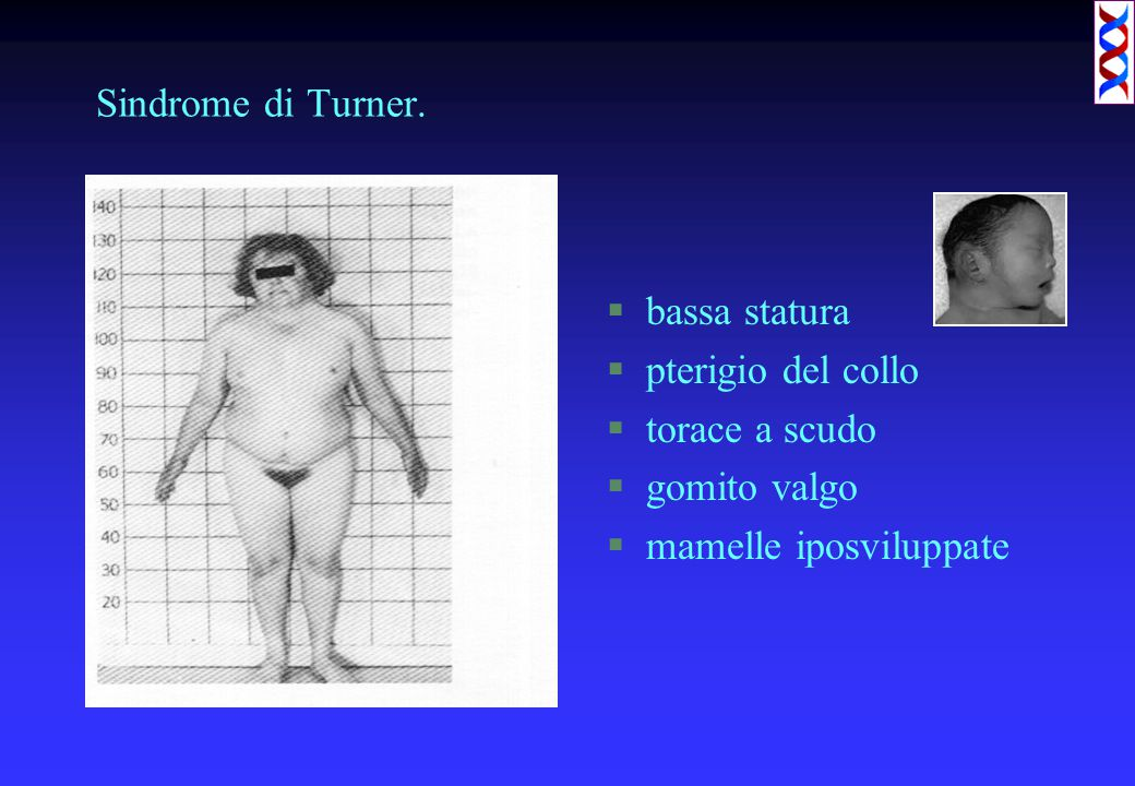 Sindrome di Turner. bassa statura. pterigio del collo.