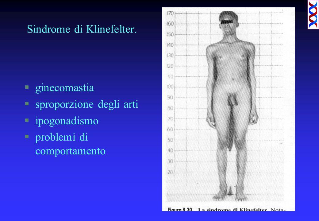 Sindrome di Klinefelter.
