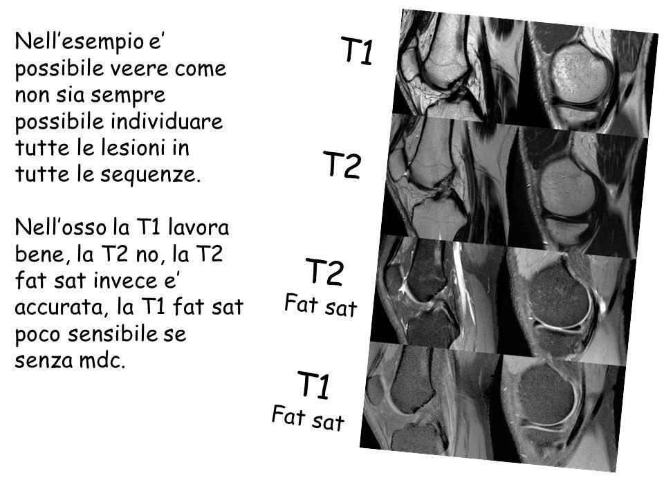 Nell'esempio e' possibile veere come non sia sempre possibile individuare tutte le lesioni in tutte le sequenze.