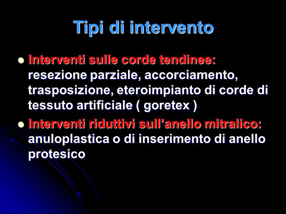Tipi di intervento