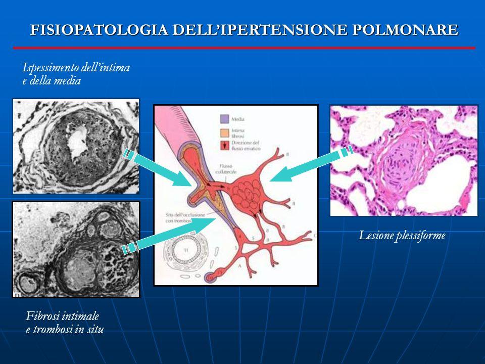 FISIOPATOLOGIA DELL'IPERTENSIONE POLMONARE