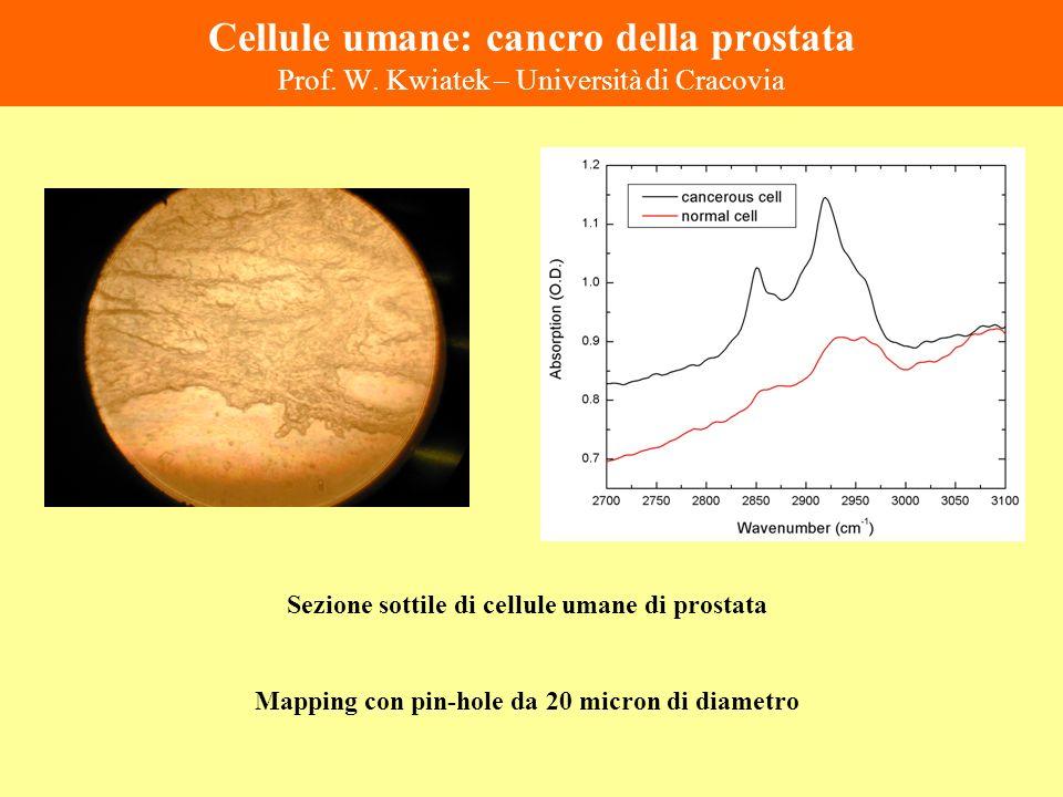 Cellule umane: cancro della prostata Prof. W