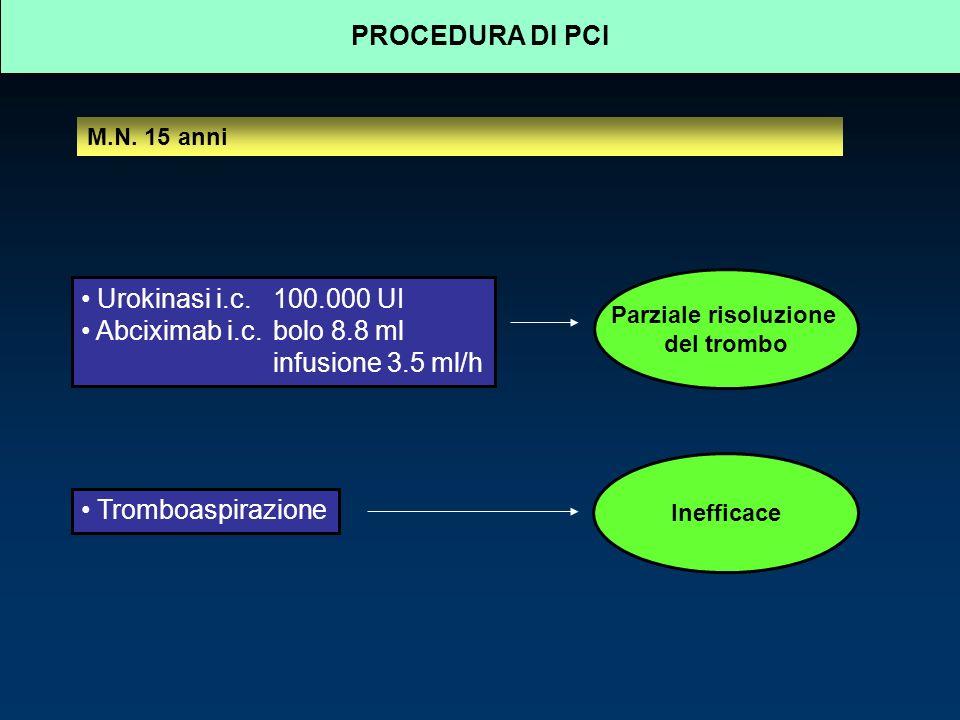 PROCEDURA DI PCI Urokinasi i.c. 100.000 UI Abciximab i.c. bolo 8.8 ml