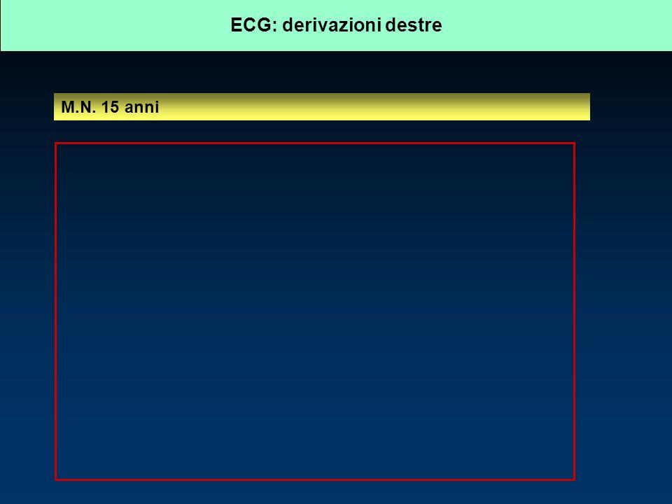ECG: derivazioni destre