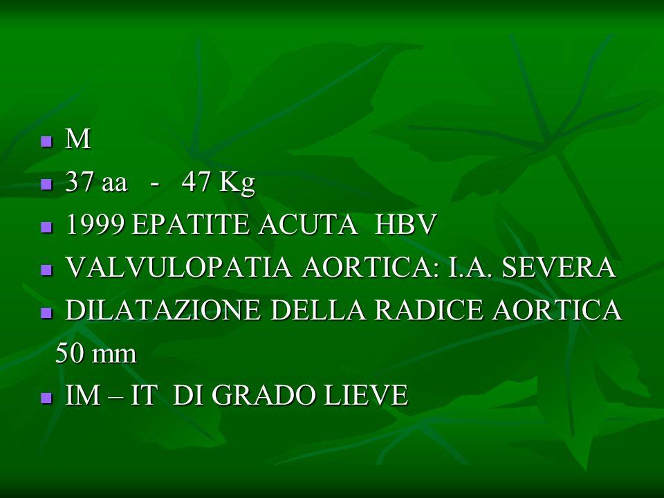 M 37 aa - 47 Kg. 1999 EPATITE ACUTA HBV. VALVULOPATIA AORTICA: I.A. SEVERA. DILATAZIONE DELLA RADICE AORTICA.