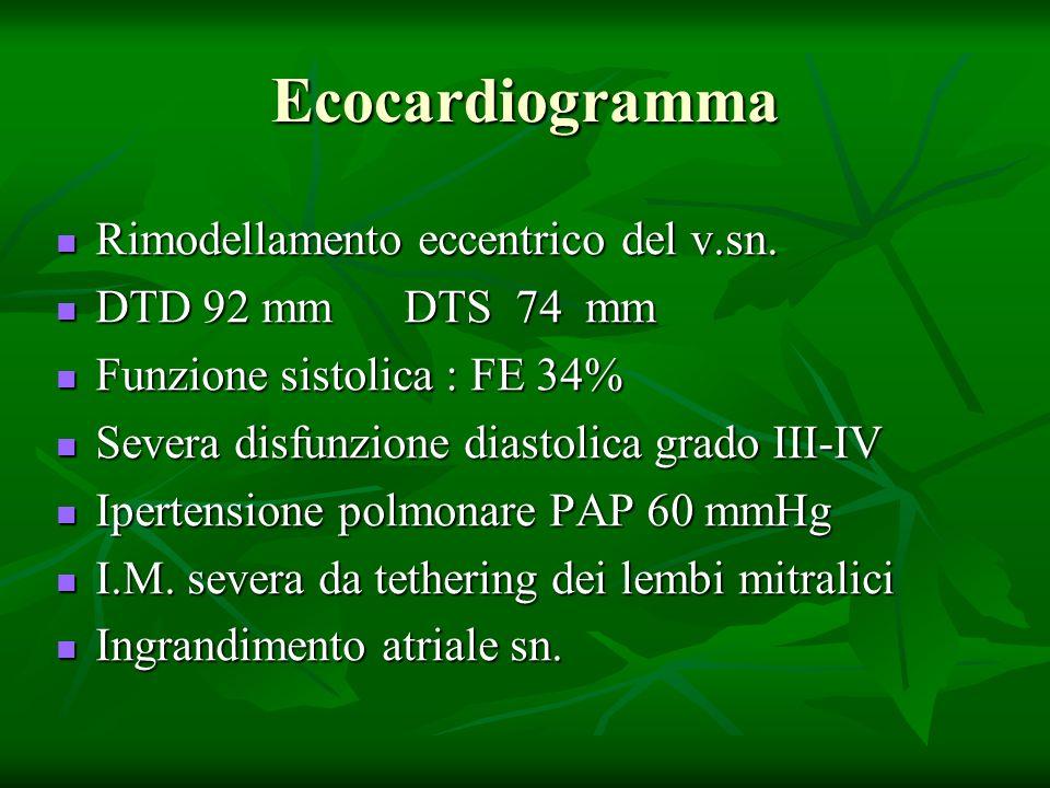Ecocardiogramma Rimodellamento eccentrico del v.sn.