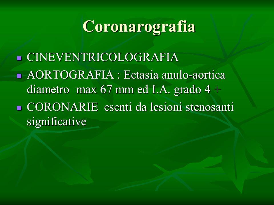 Coronarografia CINEVENTRICOLOGRAFIA
