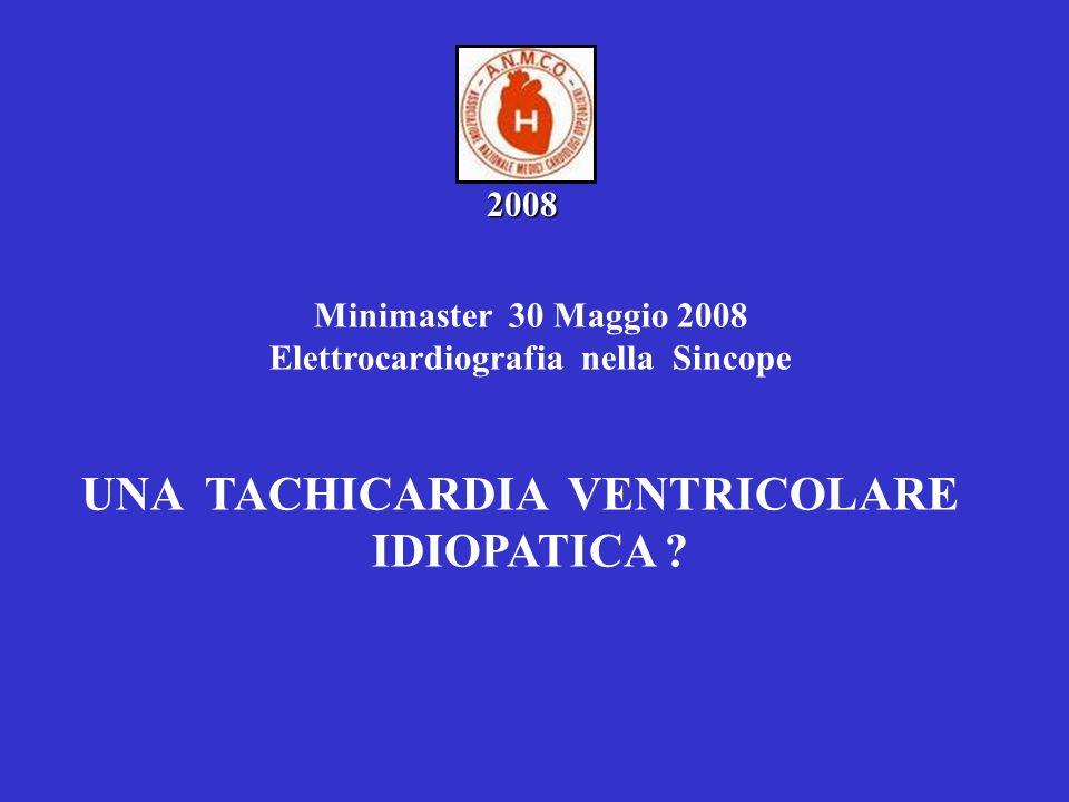 Elettrocardiografia nella Sincope UNA TACHICARDIA VENTRICOLARE