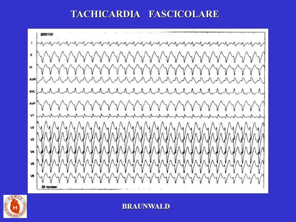 TACHICARDIA FASCICOLARE