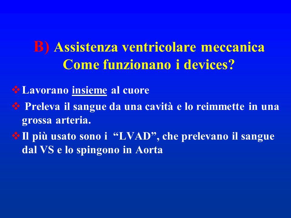 B) Assistenza ventricolare meccanica Come funzionano i devices