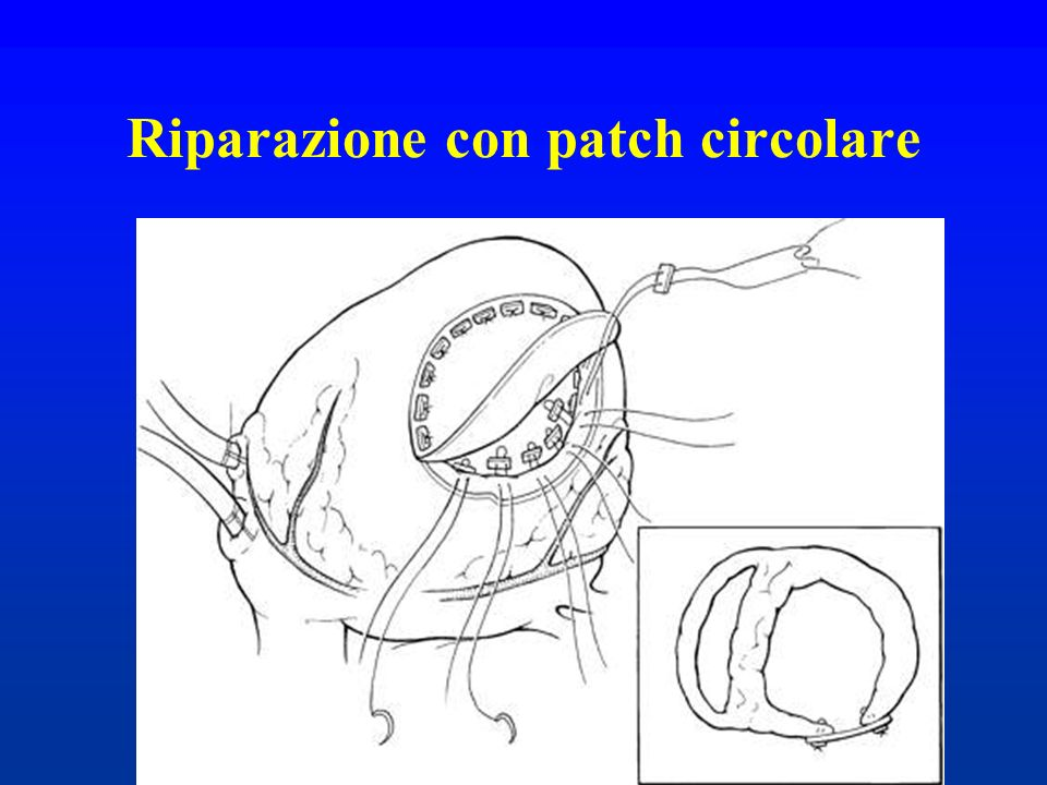 Riparazione con patch circolare