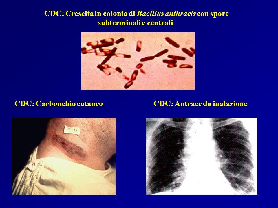 CDC: Crescita in colonia di Bacillus anthracis con spore subterminali e centrali